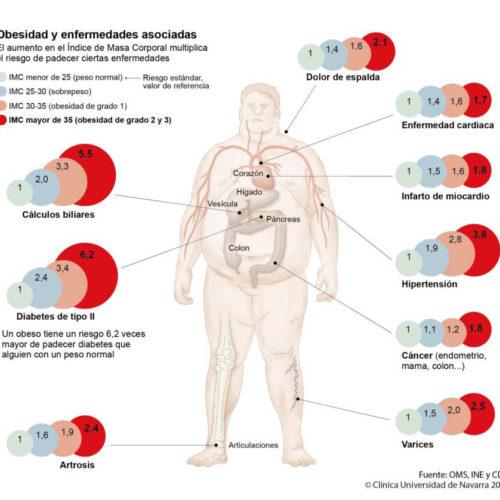 La cirugía metabólica como nueva opción de tratamiento de la Diabetes Tipo 2 | Salud y Bienestar