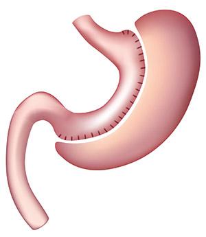 Manga Gástrica o Sleeve gastrectomy | Técnicas de Cirugía Bariátrica | Hospital Austral | Austral Bariátrica